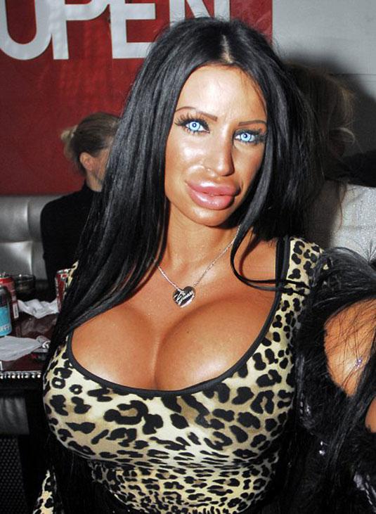 Девушка с накаченными губами и грудями